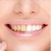 Dişlerinizi 2 Dakikada Beyazlatacak Doğal Yöntemler